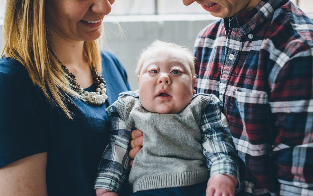 Alyssa and Ben: Aplasia Cutis Congenita