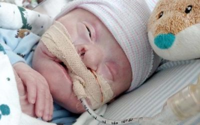 List of Baby's Complications Requires Faith from Parents