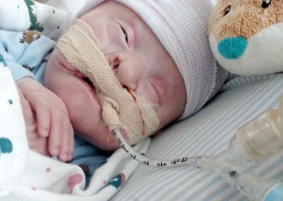 Brittany and Tyler: Hydrocephalus, Encephalocele, and other complications.