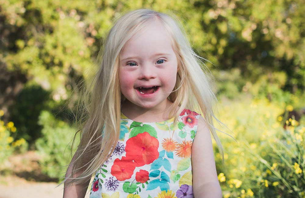 Down Syndrome Adoption was a No-Brainer