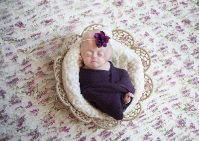 Amanda: Pfeiffer syndrome