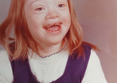 Sharmi with Down Syndrome Defied Doctors