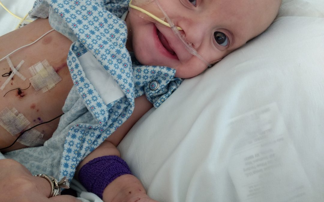 One of only a handful reported, baby born with 7 Q Chromosome Deletion