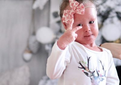 "what ""H.I."" means to us! A baby born with very a rare skin condition."